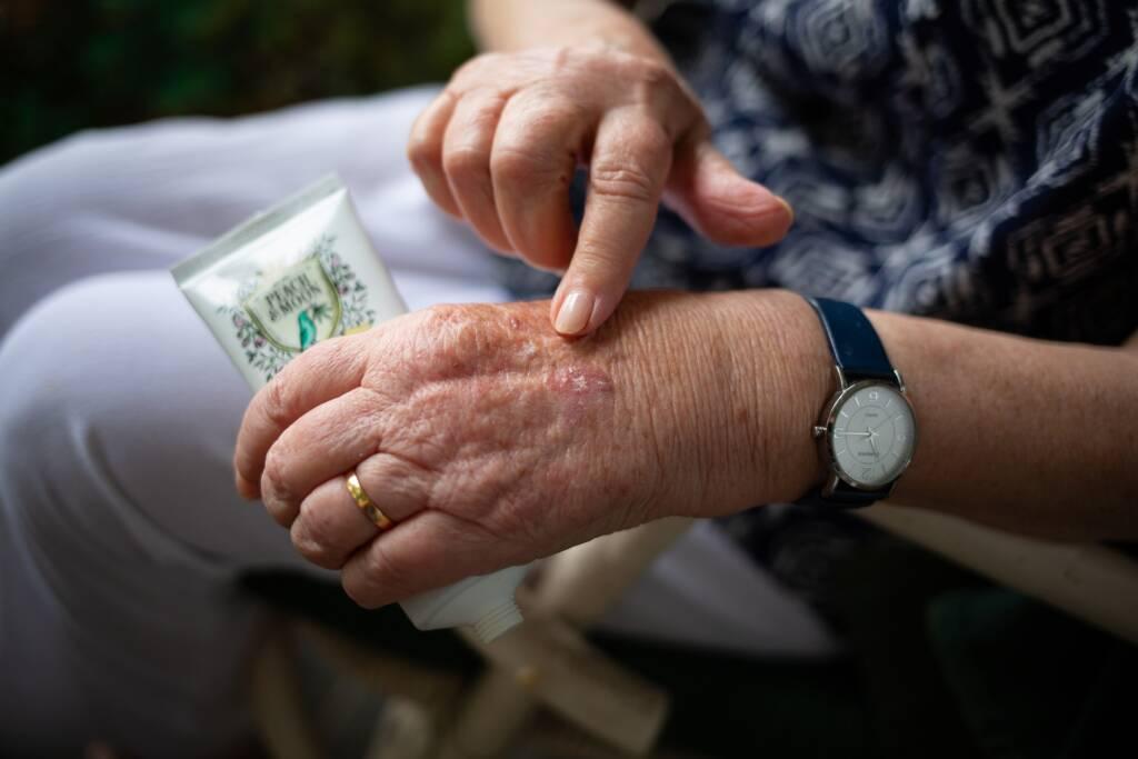 Artritis de mano en Ayurveda